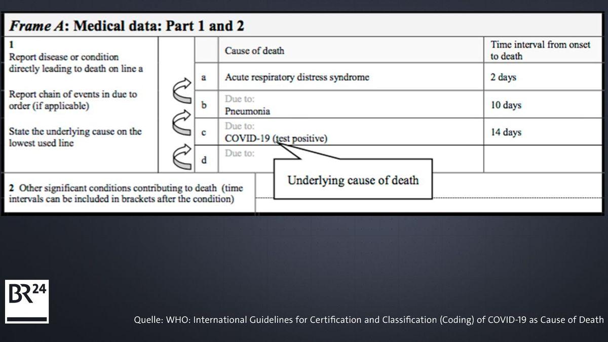 Todesbescheinigungs-Formular der WHO