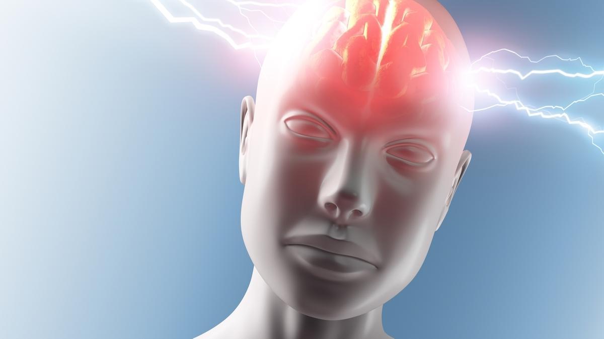 Illustration Brainfreeze, Hirnfrost: Blitze schlagen auf den Kopf ein. Eisessen kann plötzliche Schmerzen verursachen.