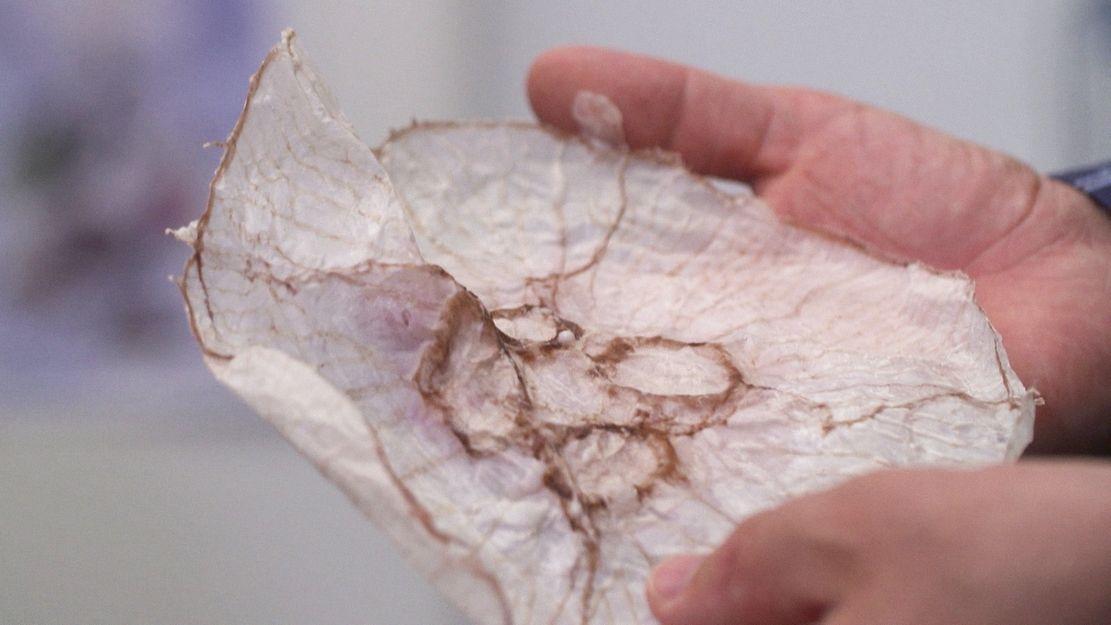 eine getrocknete Ohrenqualle. Quallen sind nahrhaft und könnten in Zukunft auf unserem Speiseplan stehen
